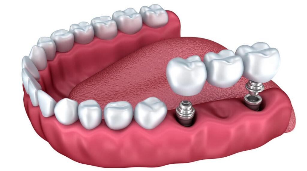 Implant Tedavisi Fiyatları Nedir?