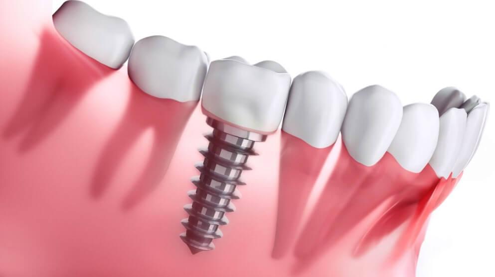 dental-implant-yontemleri