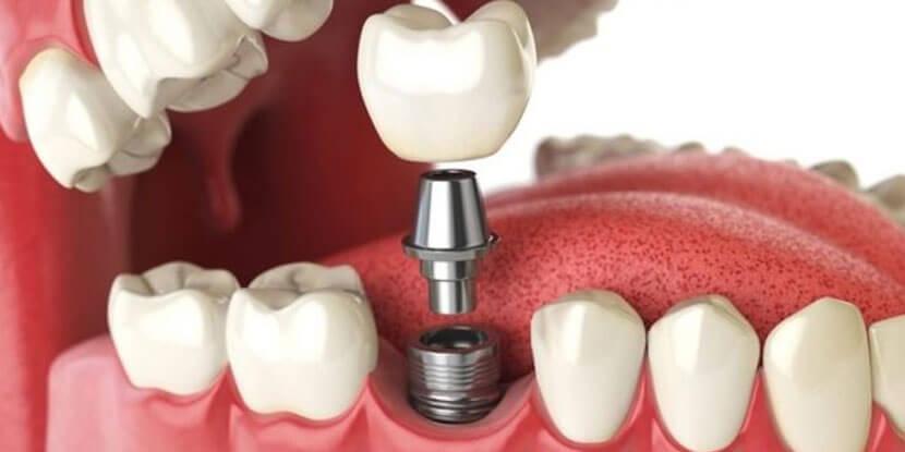 implant-klinigi