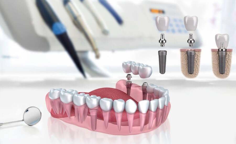 implant-sikca-sorulan-sorular